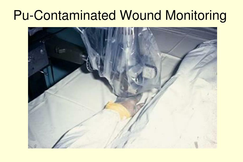 Pu-Contaminated Wound Monitoring