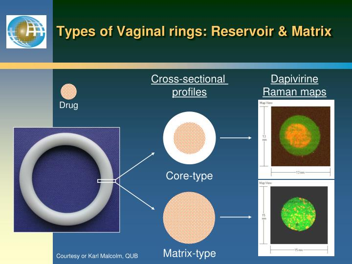 Types of Vaginal rings: Reservoir & Matrix