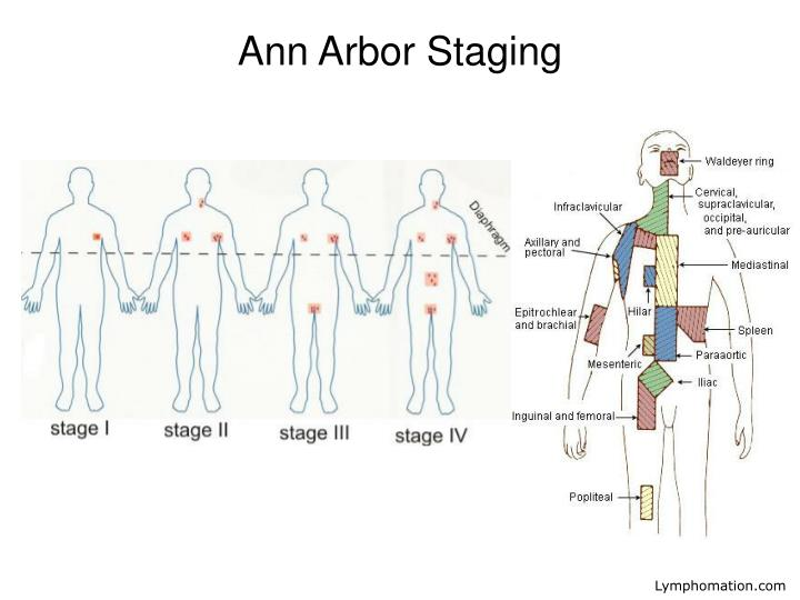 Ann Arbor Staging