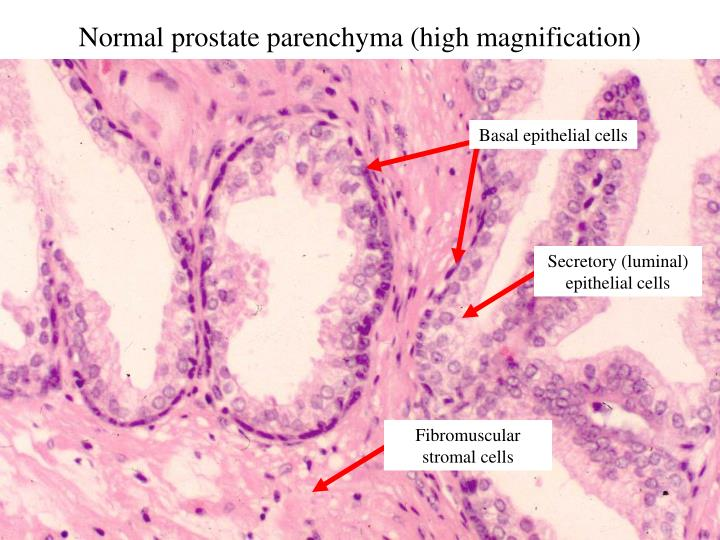 Normal prostate parenchyma (high magnification)