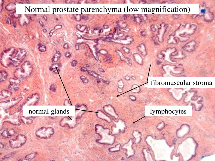 Normal prostate parenchyma (low magnification)