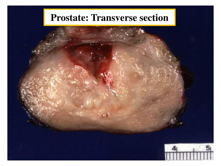 Prostate: Transverse section