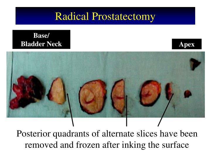 Radical Prostatectomy