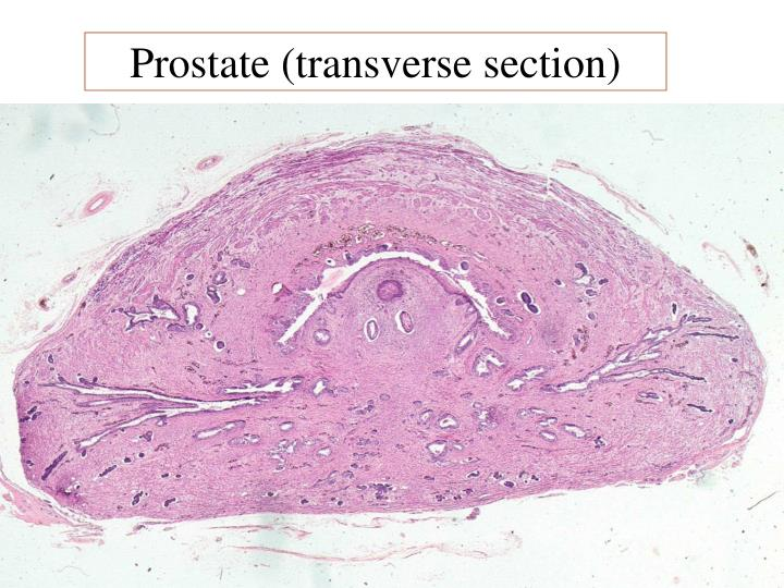 Prostate (transverse section)