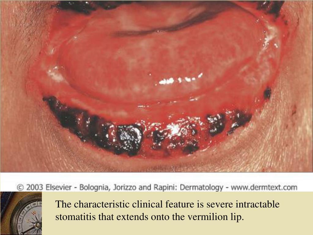 The characteristic clinical feature is severe intractable stomatitis that extends onto the vermilion lip.