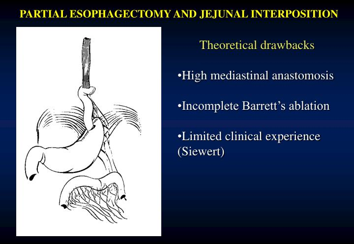 PARTIAL ESOPHAGECTOMY AND JEJUNAL INTERPOSITION