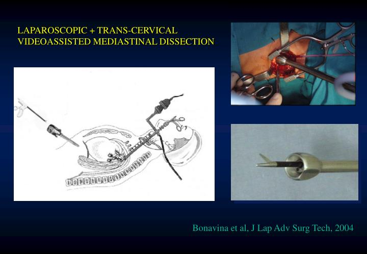LAPAROSCOPIC + TRANS-CERVICAL