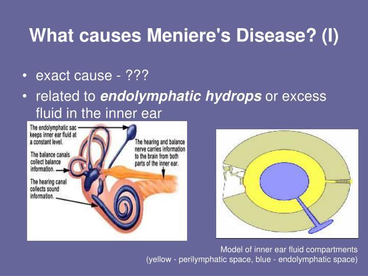 Menieres Disease: An Inner Ear Disorder