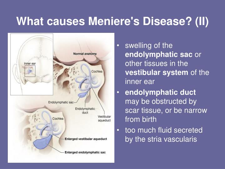 meniere's disease Meniere's disease — comprehensive overview covers symptoms and treatment of this balance and hearing disorder.