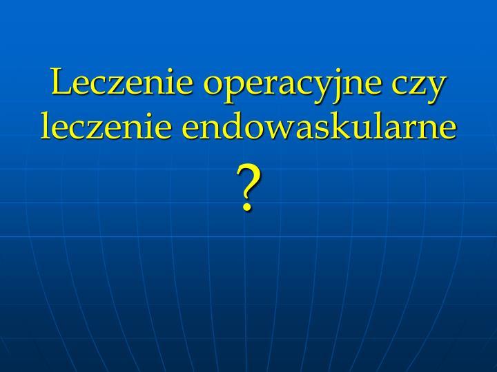 Leczenie operacyjne czy leczenie endowaskularne