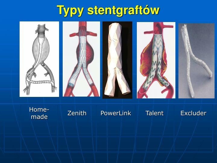 Typy stentgraftw