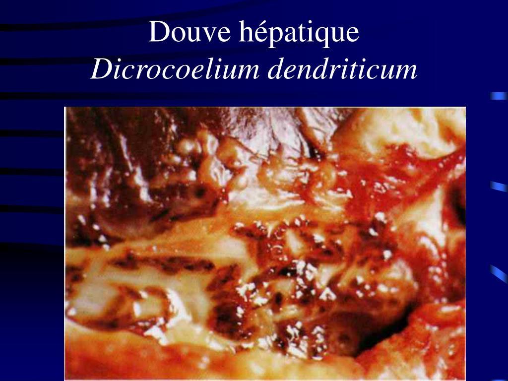 Douve hépatique