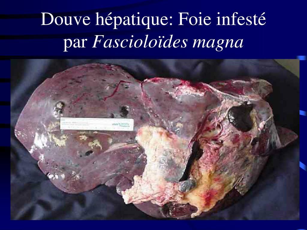Douve hépatique: Foie infesté  par