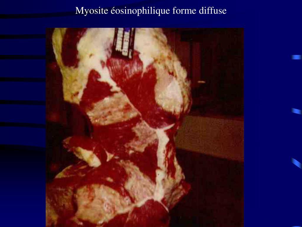 Myosite éosinophilique forme diffuse