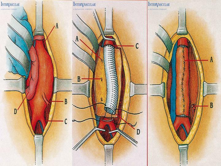 Surgical ttt