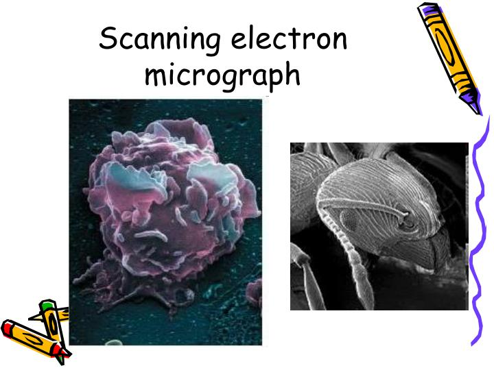 Scanning electron micrograph