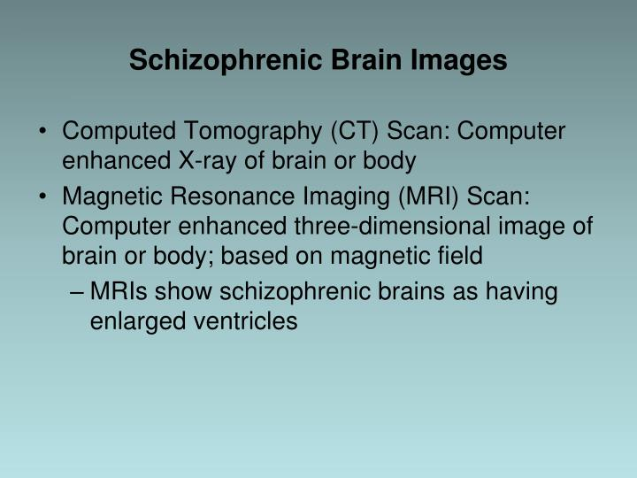 Schizophrenic Brain Images