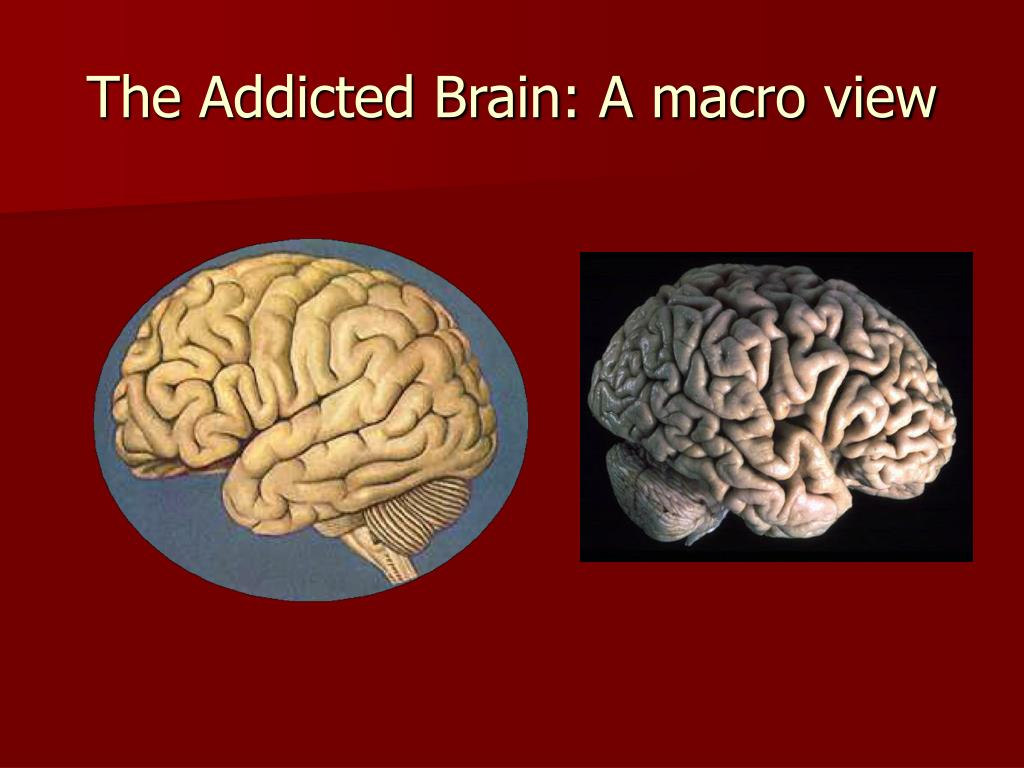 The Addicted Brain: A macro view
