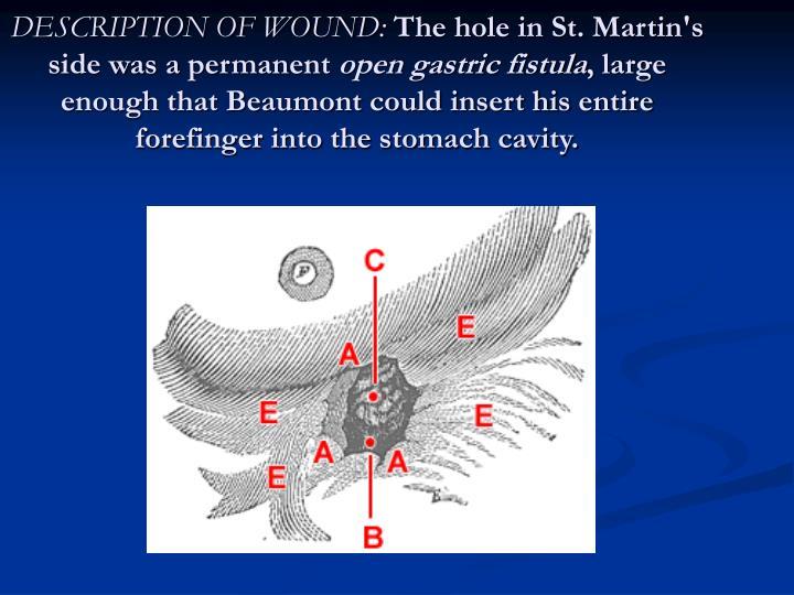DESCRIPTION OF WOUND: