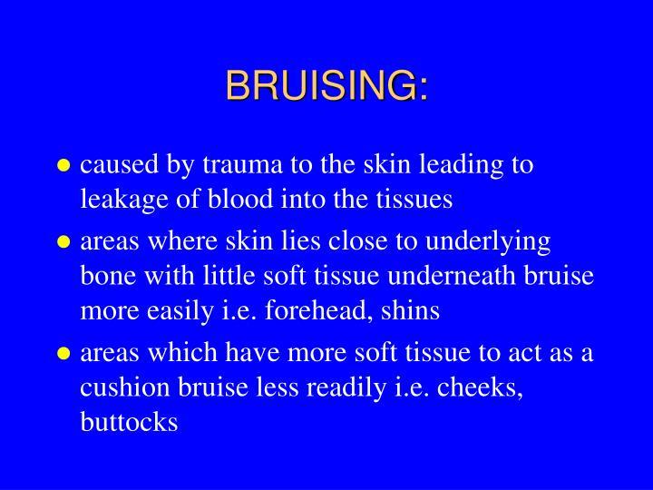 BRUISING: