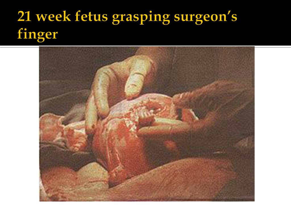 21 week fetus grasping surgeon's finger