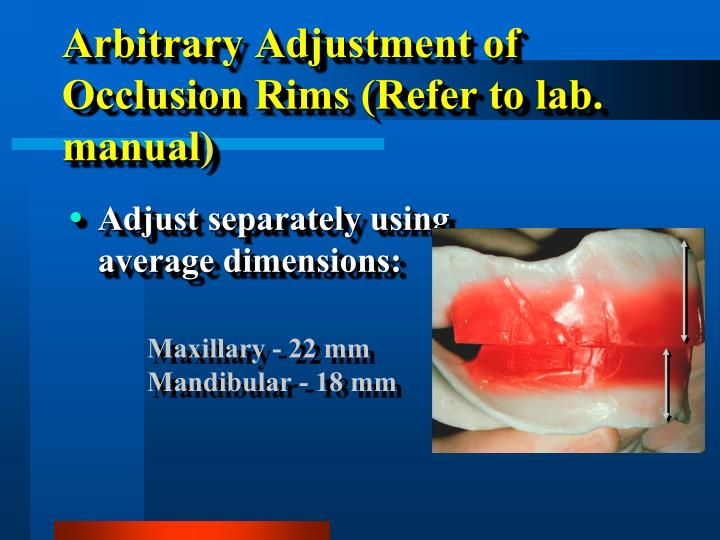 Arbitrary Adjustment of Occlusion