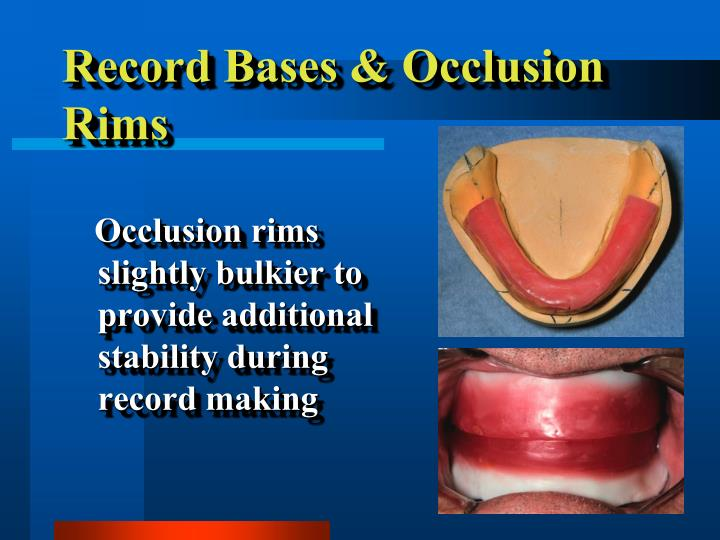 Record Bases & Occlusion Rims