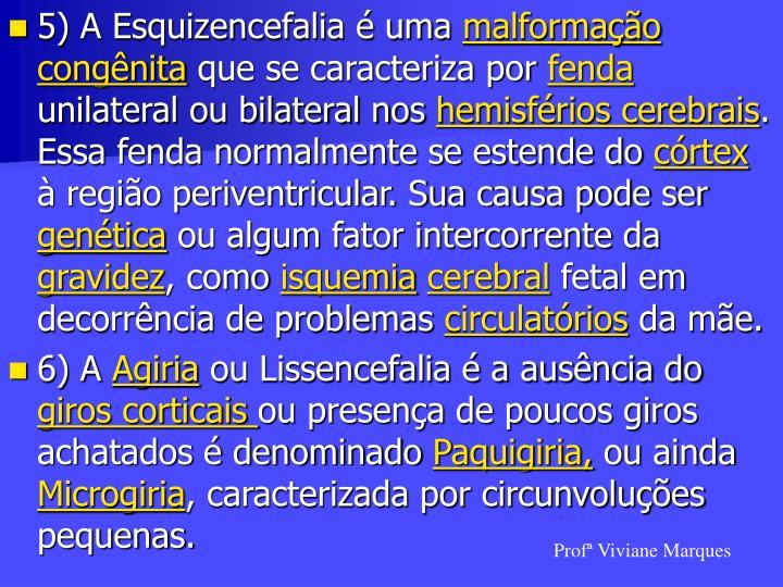 5) A Esquizencefalia é uma