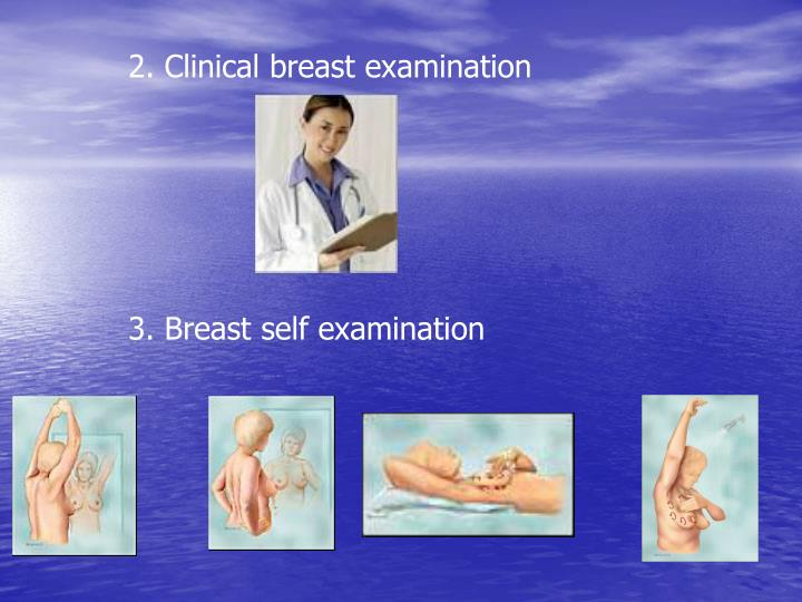 2. Clinical breast examination