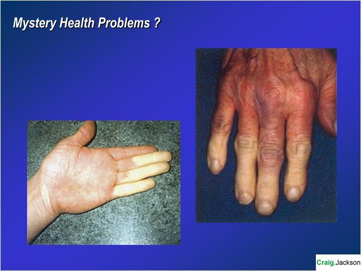 Mystery Health Problems ?