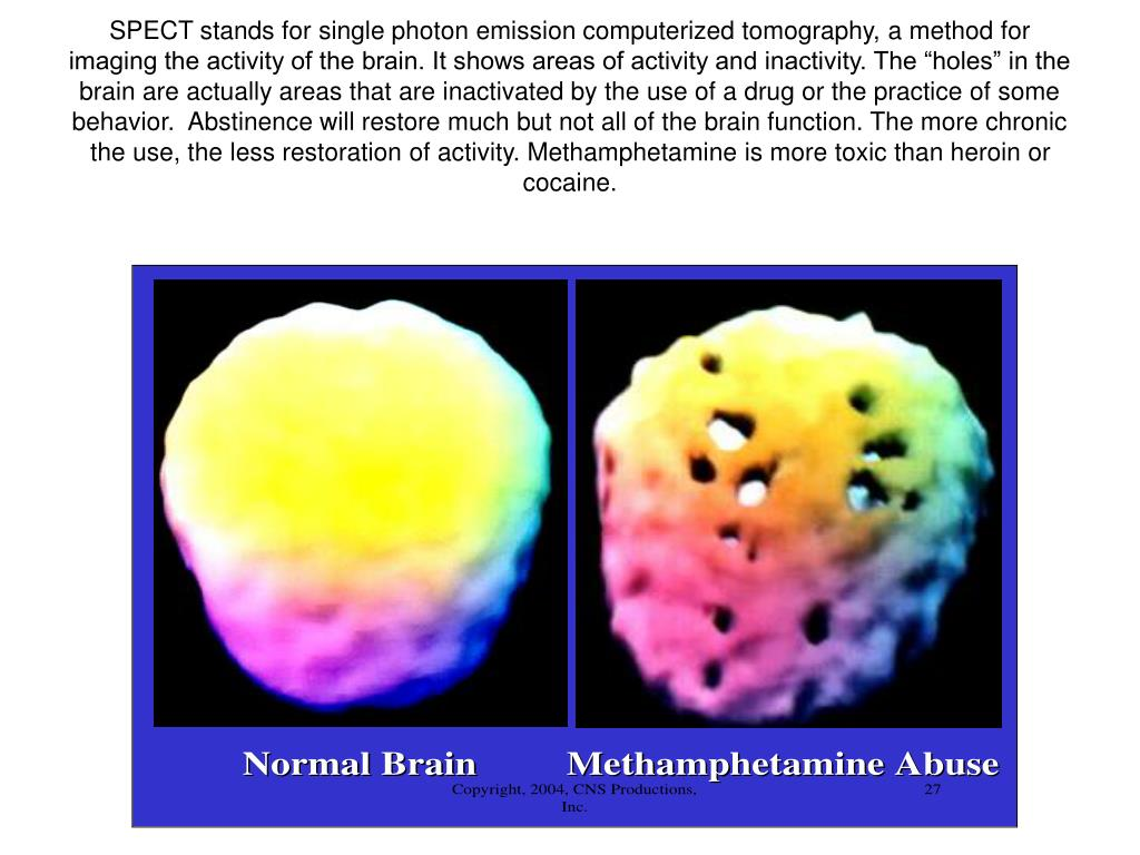 """SPECT stands for single photon emission computerized tomography, a method for imaging the activity of the brain. It shows areas of activity and inactivity. The """"holes"""" in the brain are actually areas that are inactivated by the use of a drug or the practice of some behavior.  Abstinence will restore much but not all of the brain function. The more chronic the use, the less restoration of activity. Methamphetamine is more toxic than heroin or cocaine."""