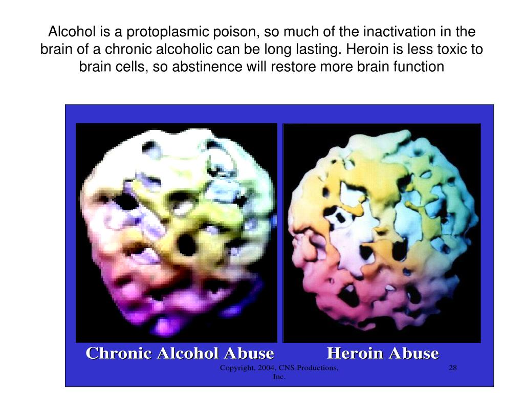 Alcohol is a protoplasmic poison, so much of the inactivation in the brain of a chronic alcoholic can be long lasting. Heroin is less toxic to brain cells, so abstinence will restore more brain function