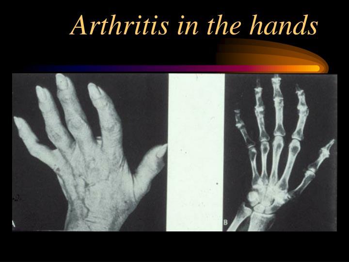 Arthritis in the hands