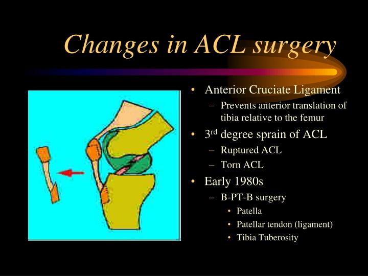 Changes in ACL surgery