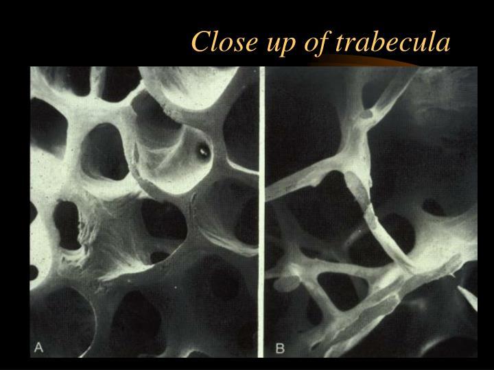 Close up of trabecula