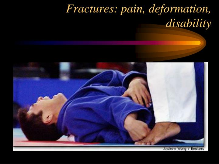 Fractures: pain, deformation, disability