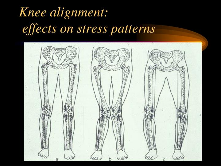Knee alignment: