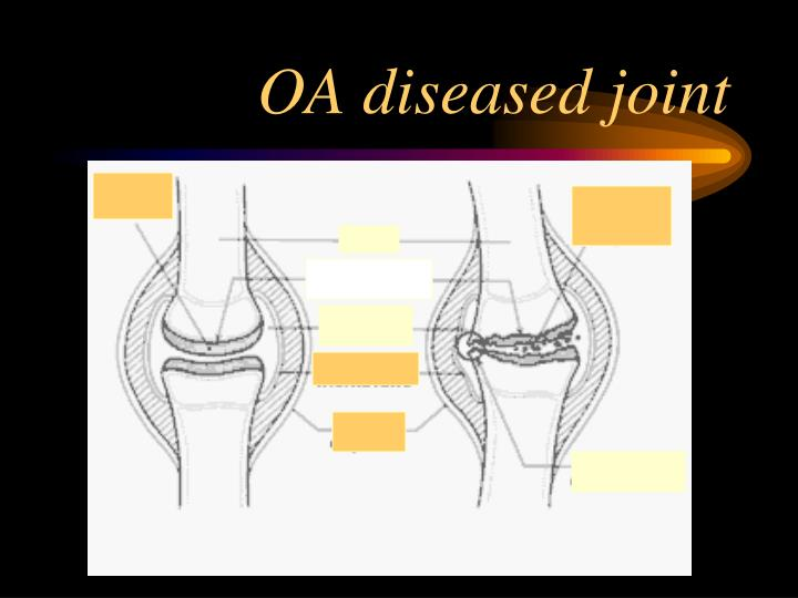 OA diseased joint