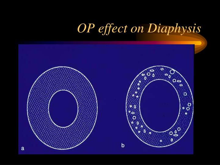 OP effect on Diaphysis