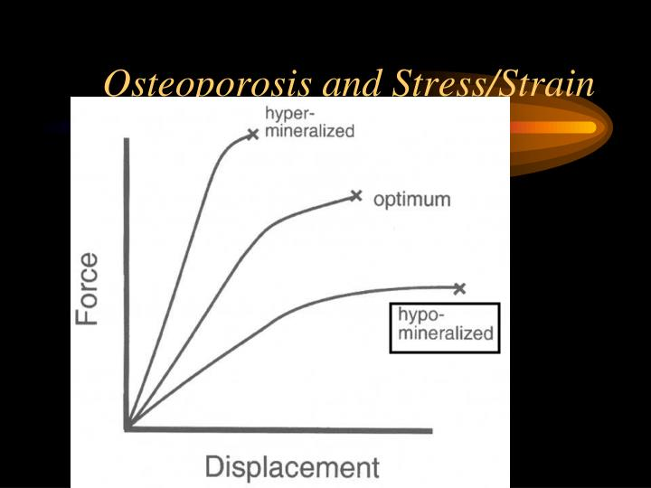 Osteoporosis and Stress/Strain