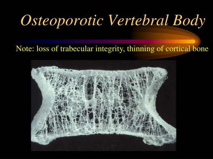 Osteoporotic Vertebral Body
