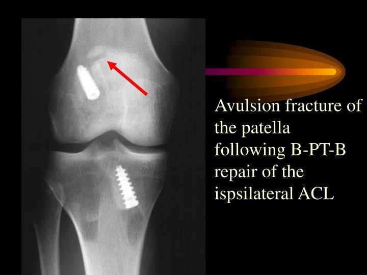 Avulsion fracture of