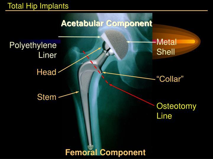Total Hip Implants