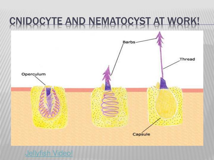 Cnidocyte