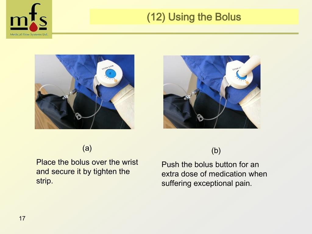 (12) Using the Bolus