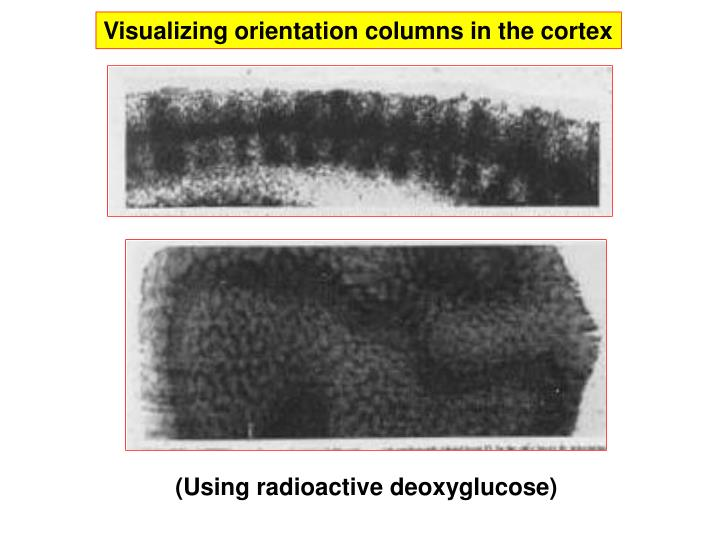 Visualizing orientation columns in the cortex