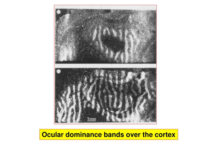 Ocular dominance bands over the cortex