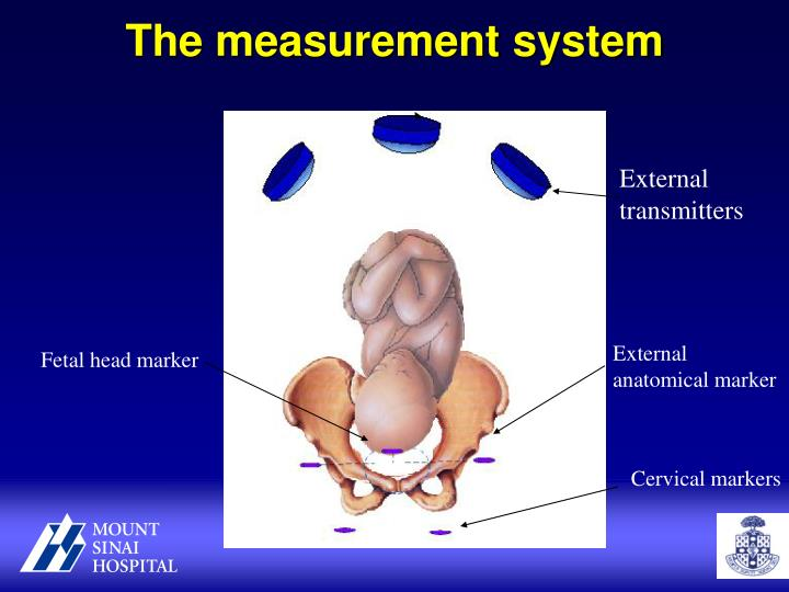 The measurement system