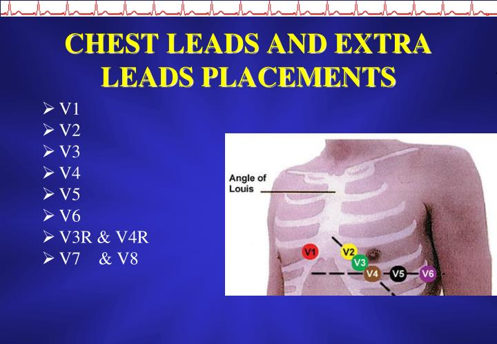 CHEST LEADS AND EXTRA LEADS PLACEMENTS