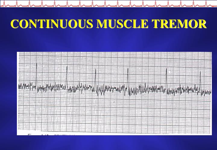 CONTINUOUS MUSCLE TREMOR